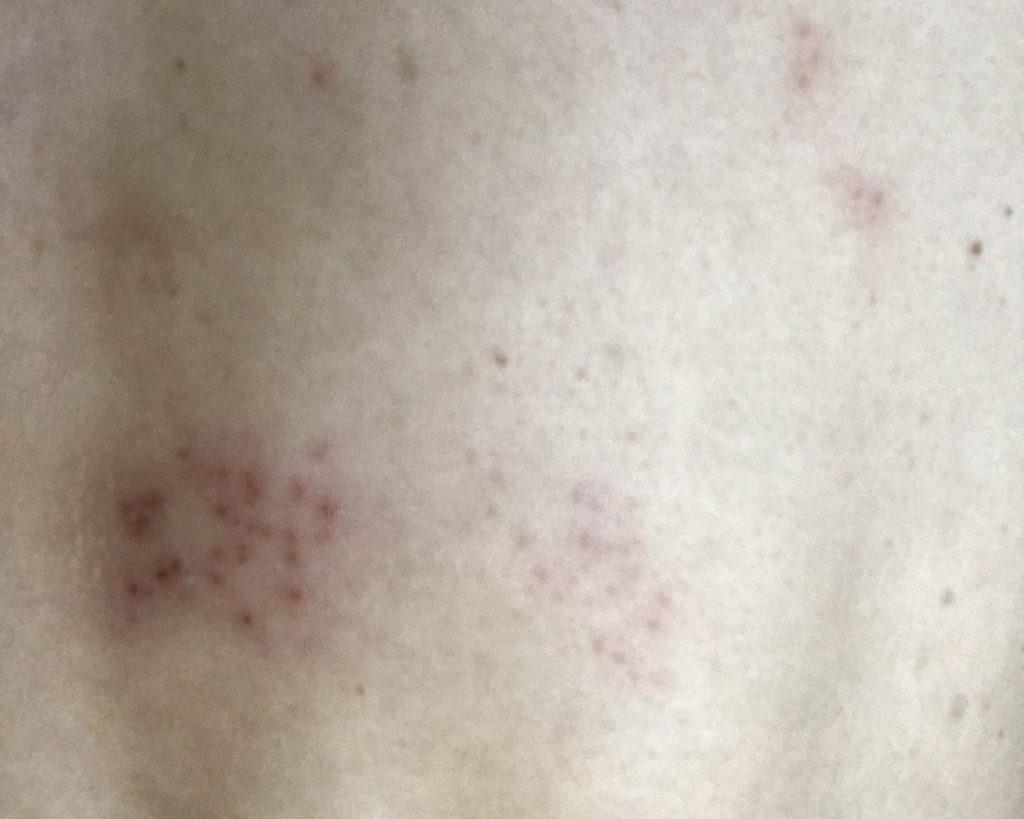 ピーク 帯状 疱疹 痛み